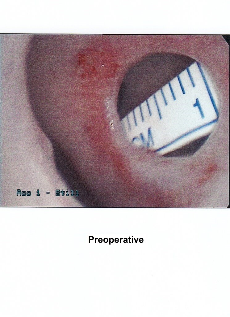 Septal perforation Before