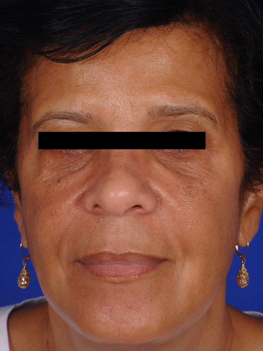 Hyperpigmentation & Anti Aging After