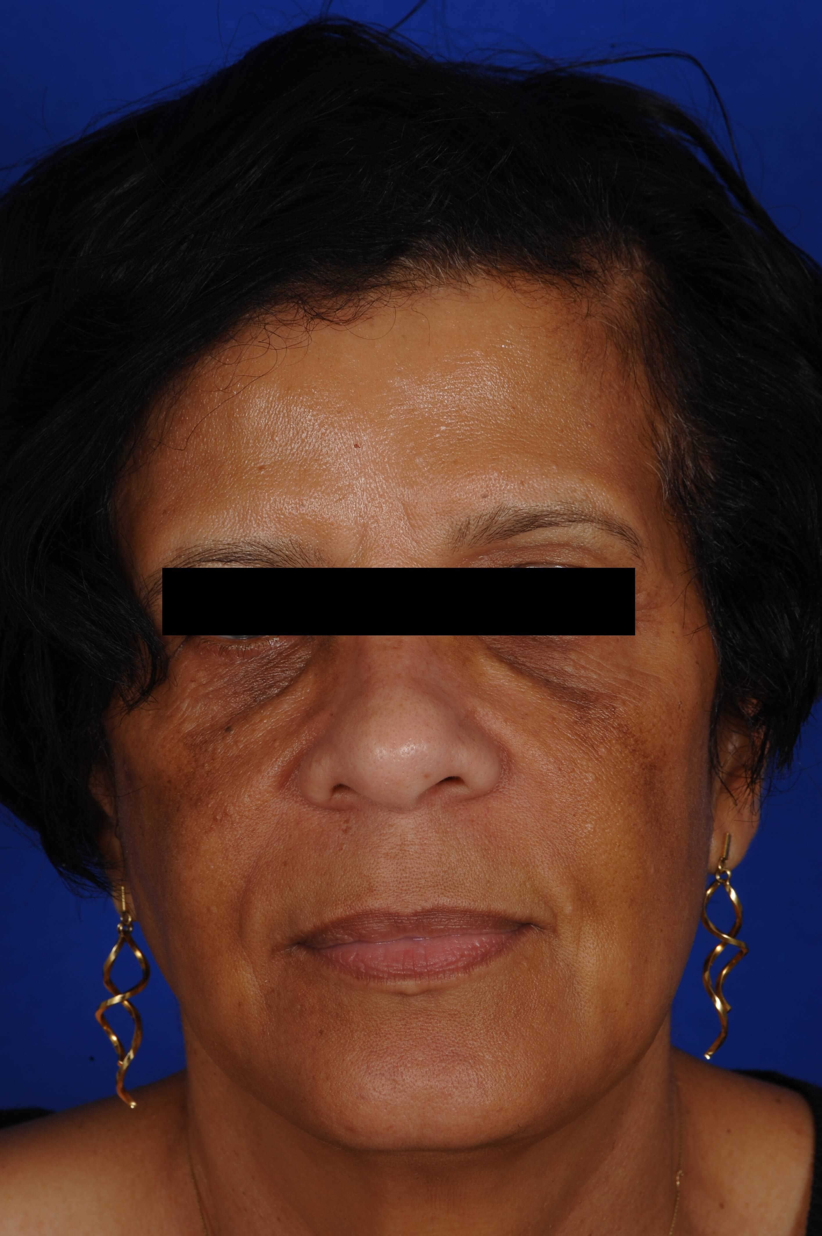 Hyperpigmentation & Anti Aging Before