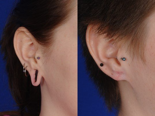 Gauged earlobe repair Before and after closeup