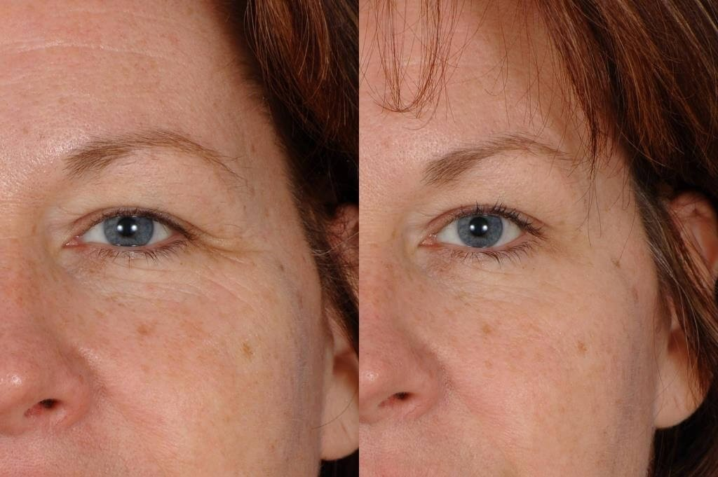Botox for Frown Lines Before and After Closeup