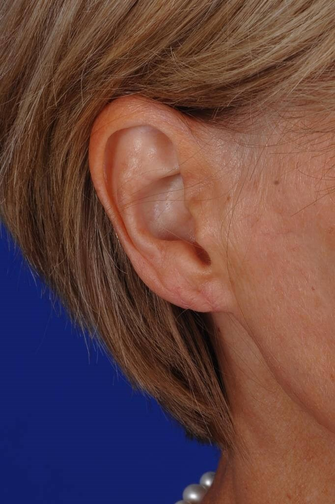 Double split earlobe After