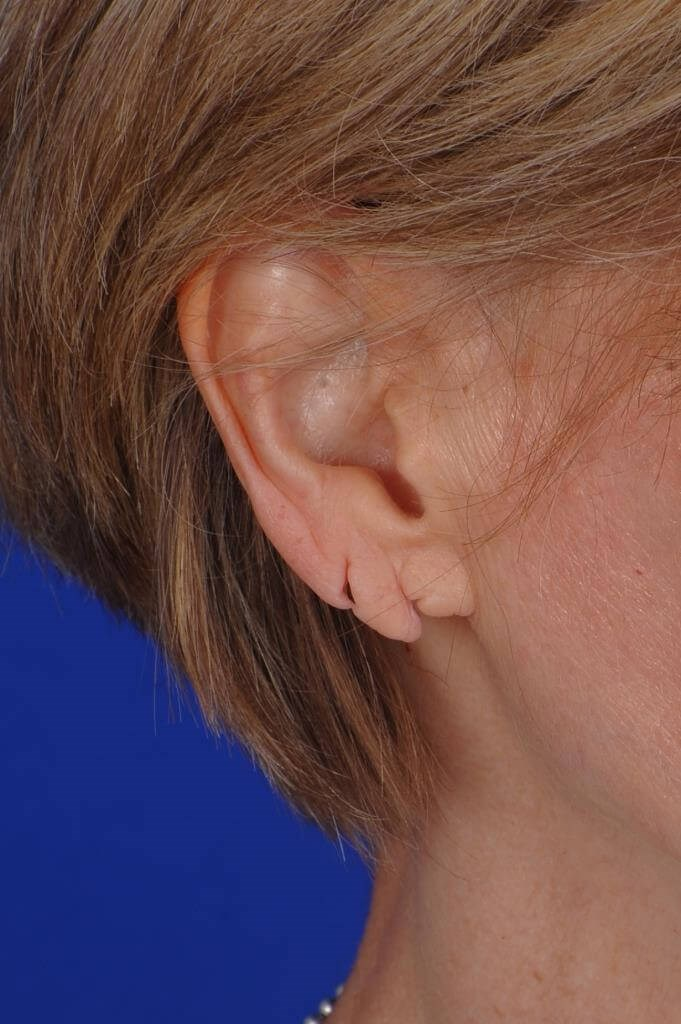 Double split earlobe Before