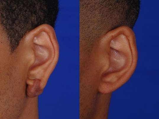 Richmond Earlobe Keloid Before and After Oblique