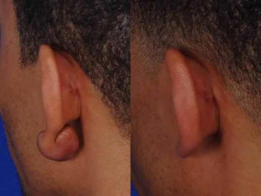 Richmond Earlobe Keloid Before and After Back