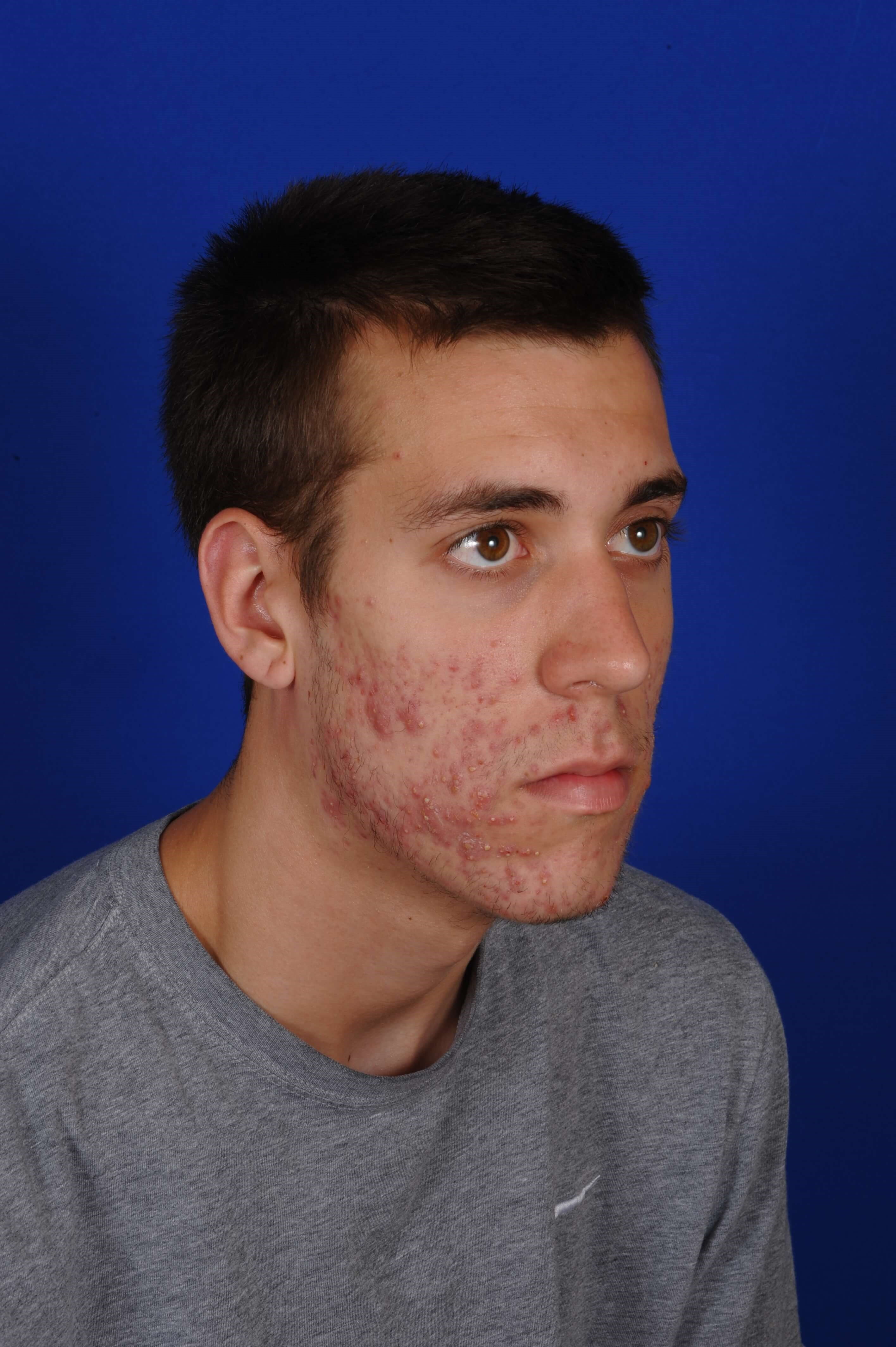 20 Year Old Male with Acne Before