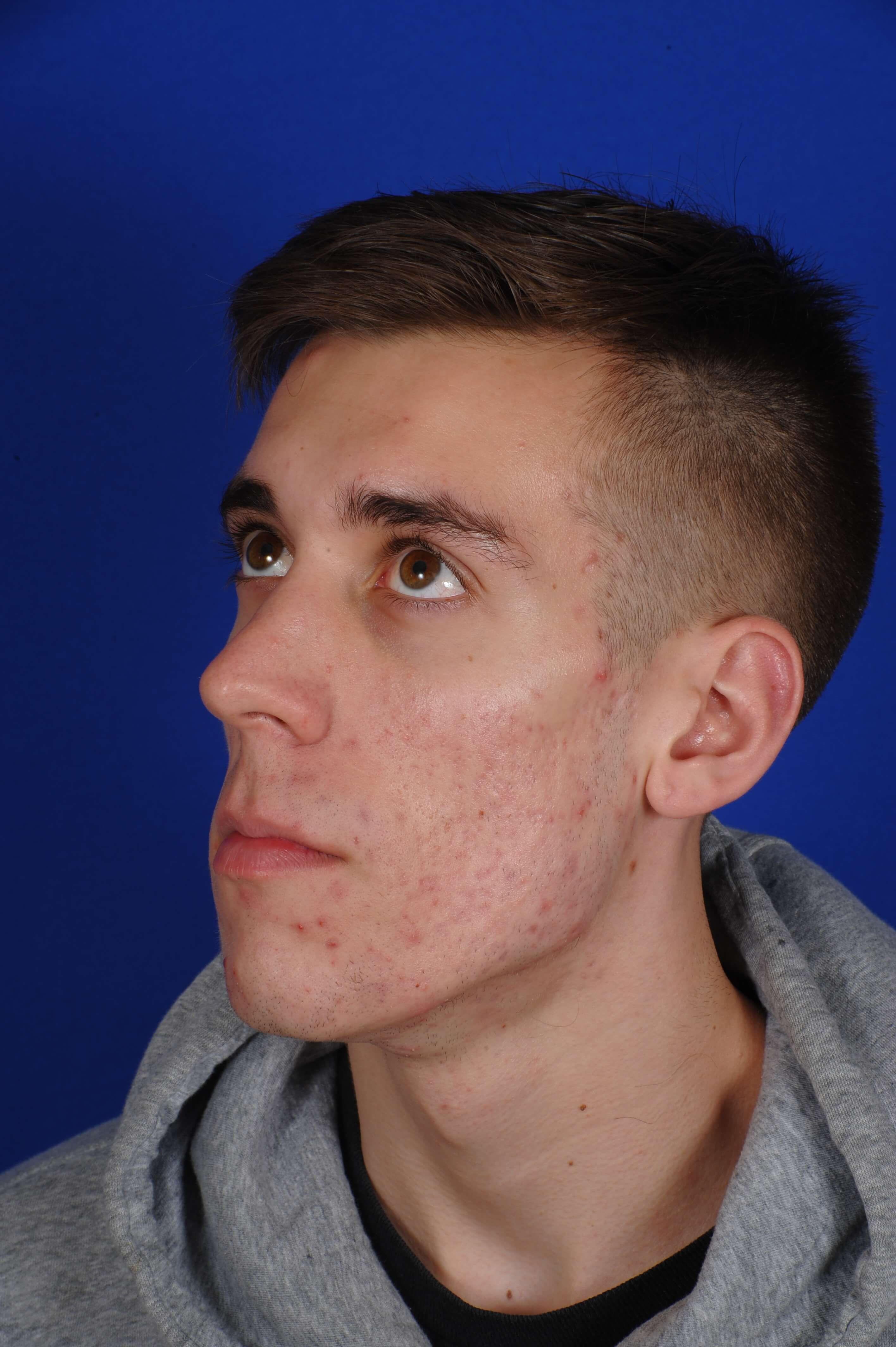 peau grasse acnéique traitement