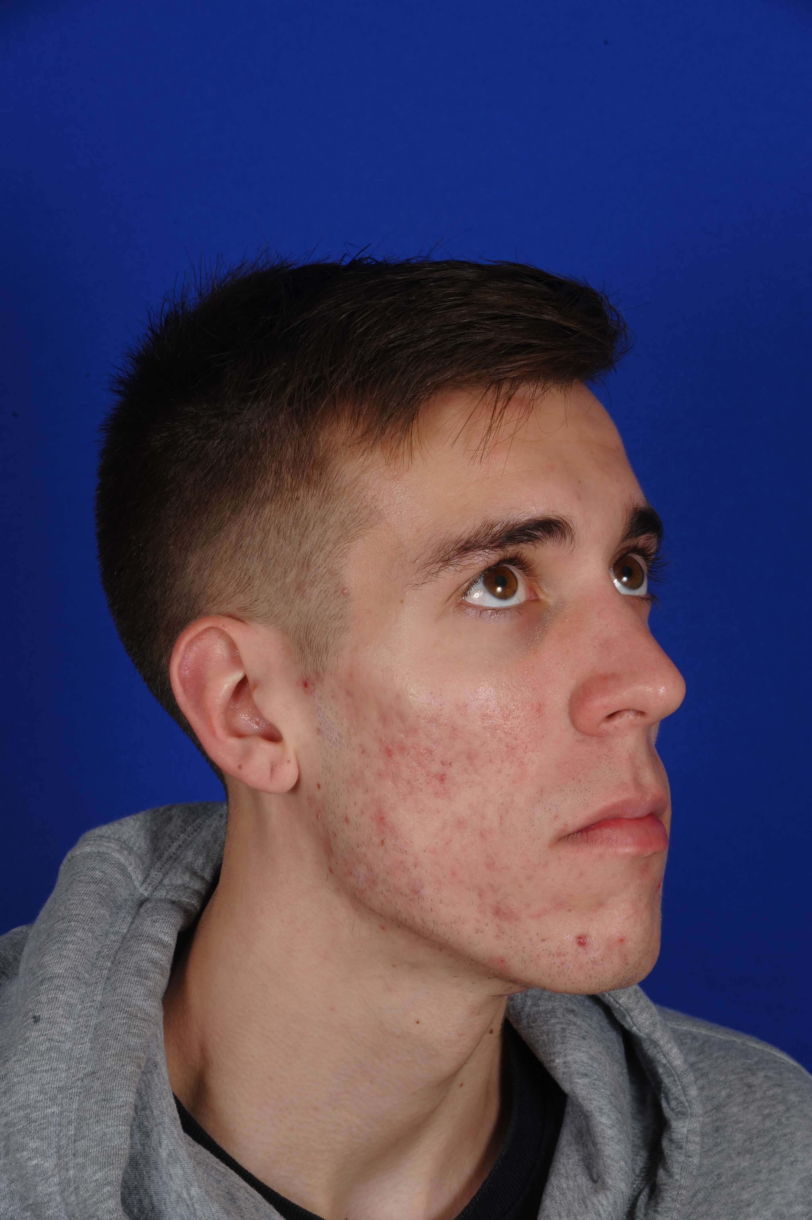 20 Year Old Male with Acne After