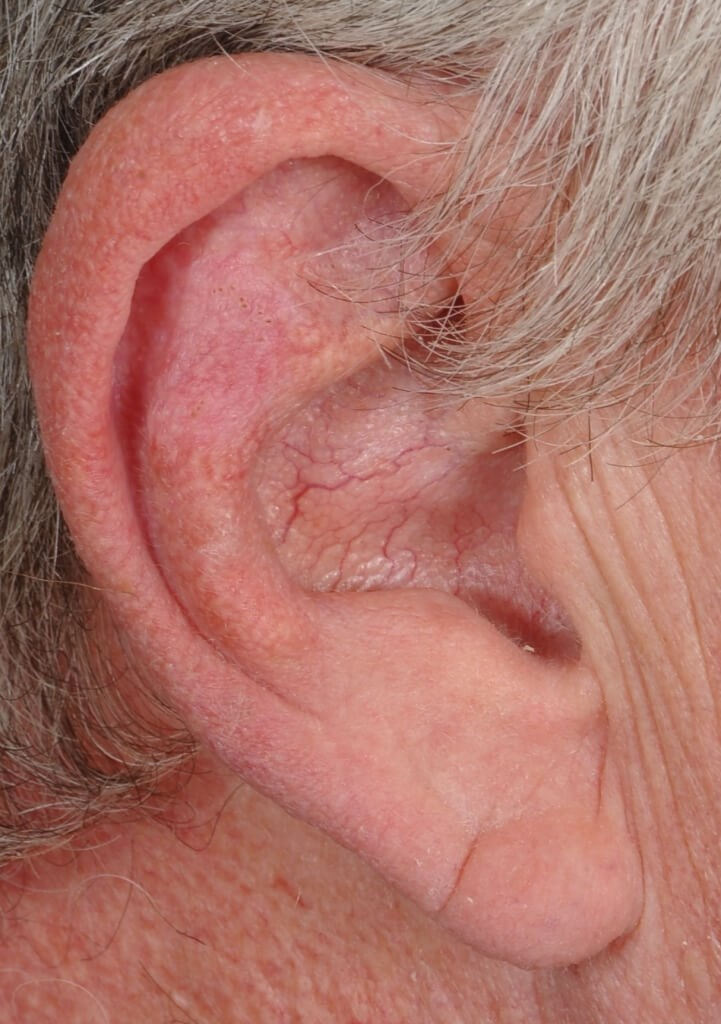 Ear Reconstruction After